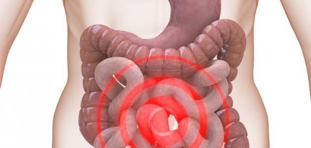صورة اعراض القولون العصبي عند النساء , ماهو مرضى القولون العصبى