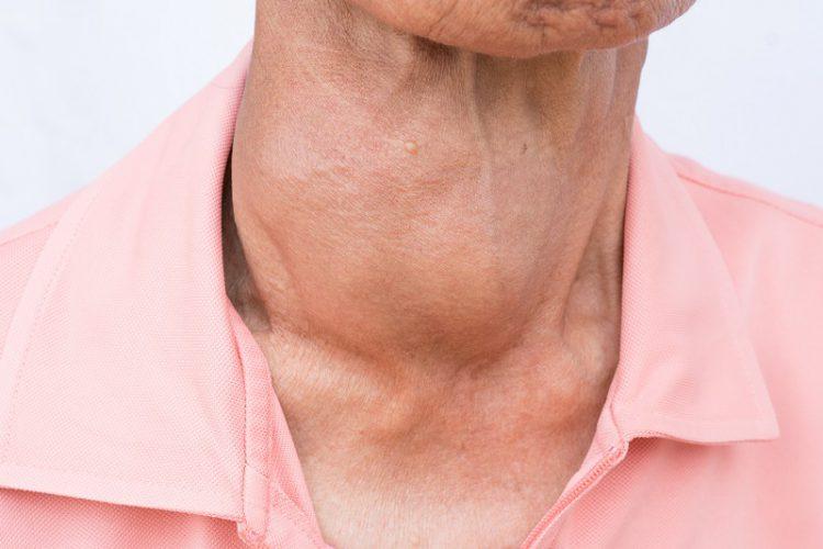 صورة مرض الغدة الدرقية , ماهى اعراض مرض الغدة الدرقية