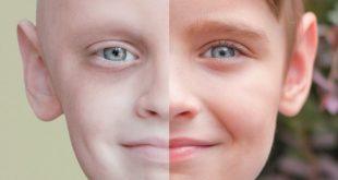صوره اخطر انواع السرطان , اعراض مرض السرطان
