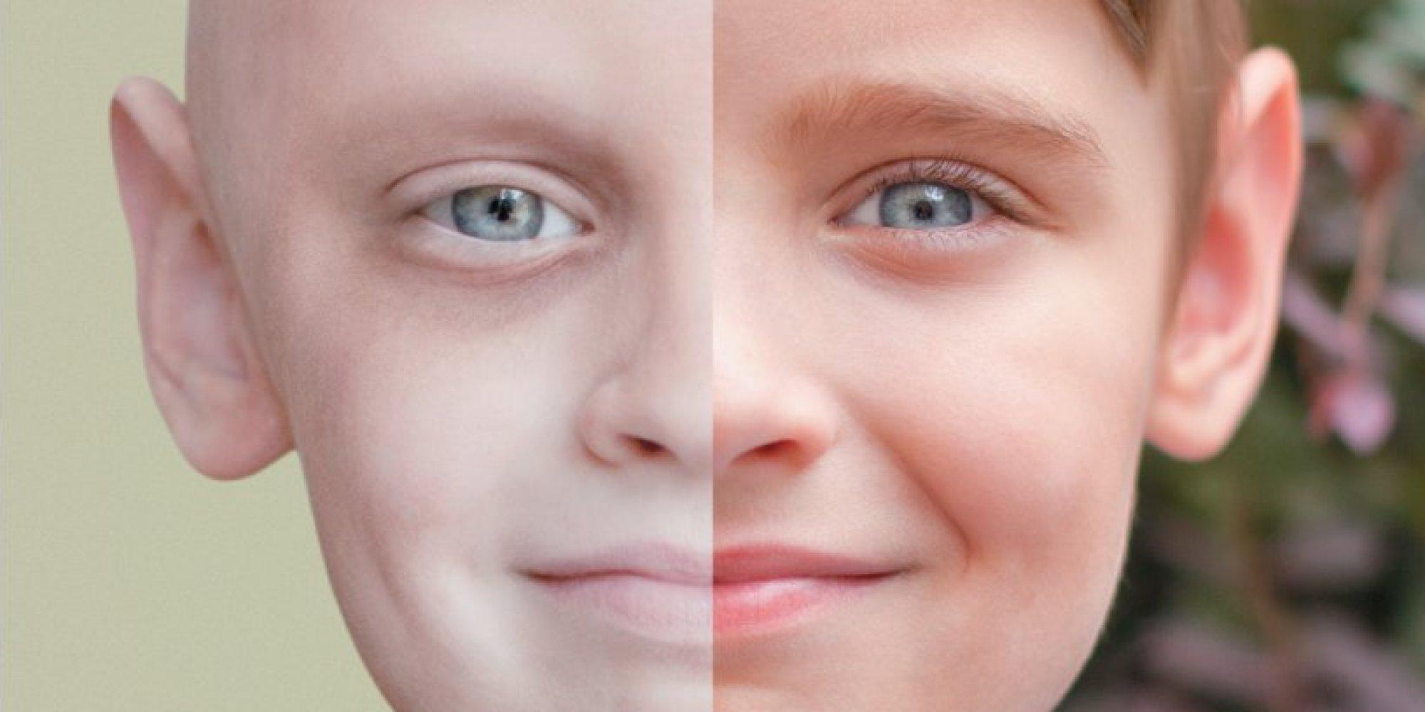 صورة اخطر انواع السرطان , اعراض مرض السرطان 2851
