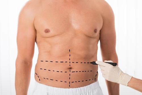 بالصور عملية نحت الجسم , مميزات عمليات نحت الجسم 2984 2