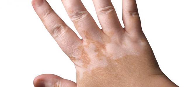 صورة علاج البرص , اعراض مرض البرص