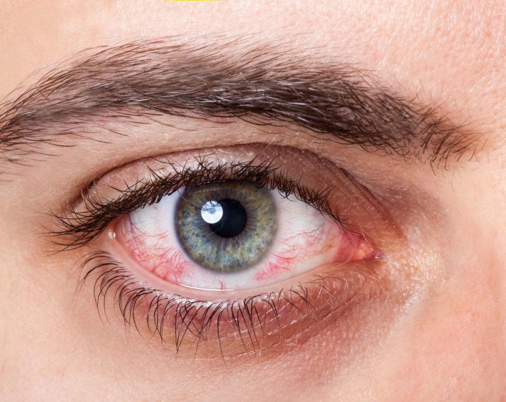 بالصور علاج حساسية العين , الاعراض والعلاج لحساسية العين 3253 1