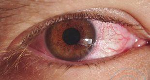 صور علاج حساسية العين , الاعراض والعلاج لحساسية العين