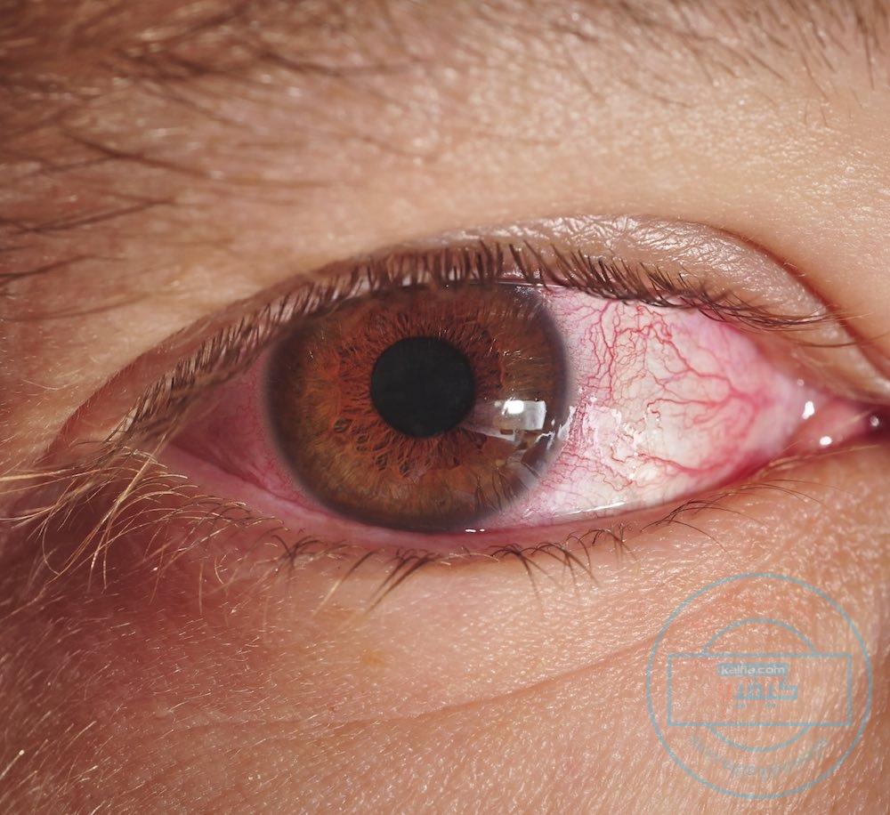 بالصور علاج حساسية العين , الاعراض والعلاج لحساسية العين 3253