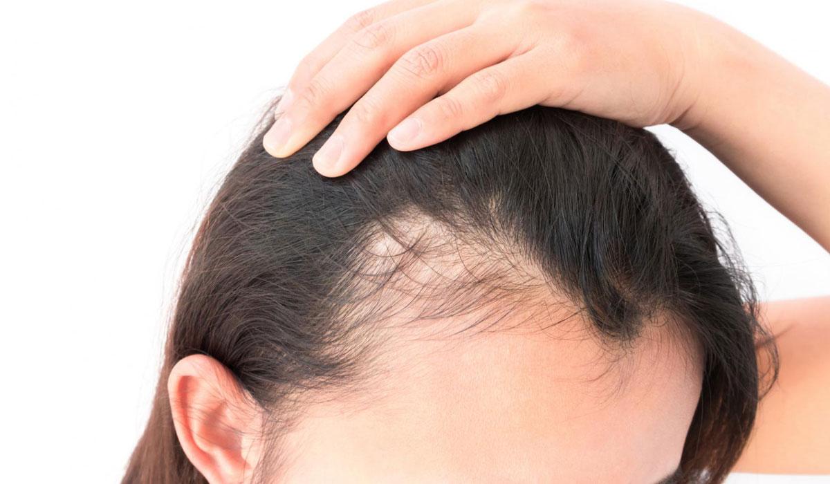 صورة علاج لتساقط الشعر , وصفات طبيعية لعلاج تساقط الشعر