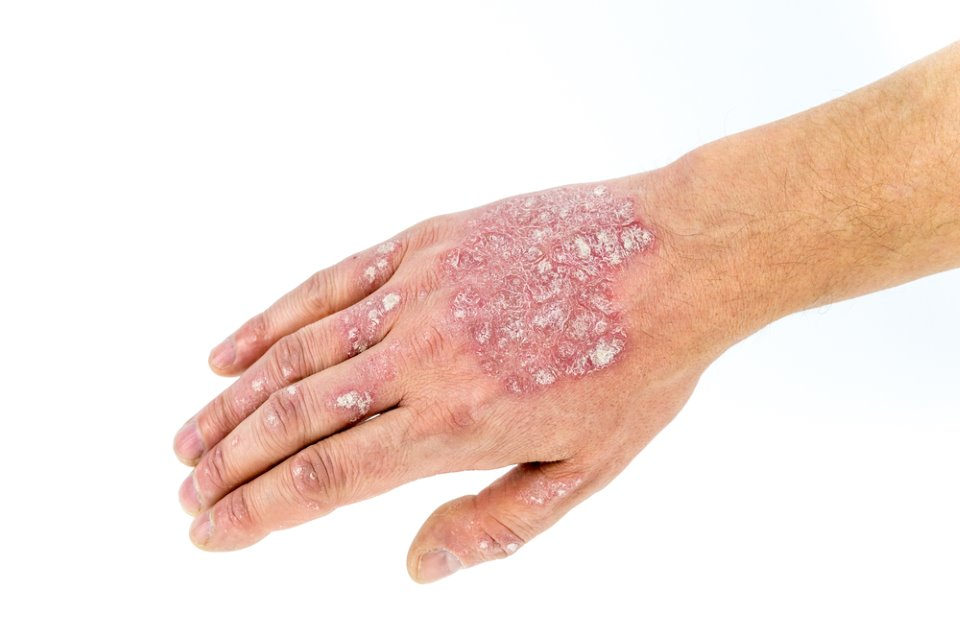 صور اعراض الصدفية , الصدفيه مرض جلدي