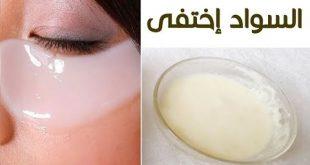 بالصور الهالات السوداء تحت العين , علاج الهالات السوداء في شهر 0 36 310x165