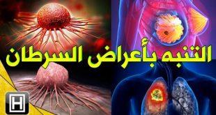 صوره علاج مرض السرطان , تعرف علي مسببات مرض السرطان