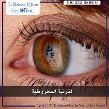 بالصور مكونات العين , تعرف علي تكوين عين الانسان 2693 4