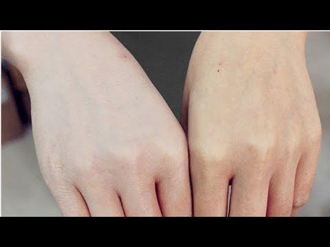 صورة خلطات تفتيح الجسم , كيفيه تفتيح الجسم بخلطات طبيعيه