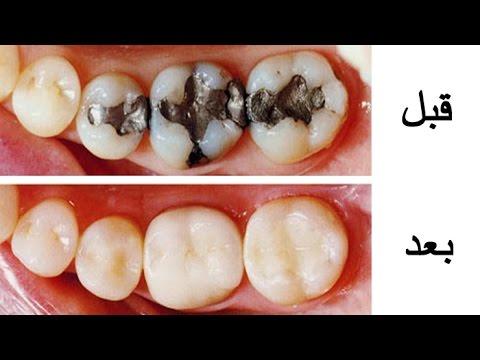 بالصور علاج تسوس الاسنان , اسباب وطرق علاج تسوس الاسنان 4057 1