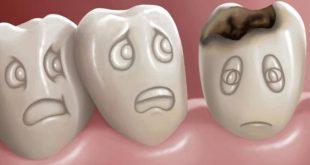 بالصور علاج تسوس الاسنان , اسباب وطرق علاج تسوس الاسنان 4057 2 310x165