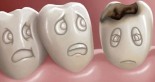 صور علاج تسوس الاسنان , اسباب وطرق علاج تسوس الاسنان