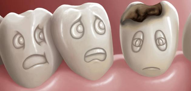 بالصور علاج تسوس الاسنان , اسباب وطرق علاج تسوس الاسنان 4057