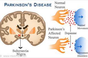 صور مرض باركنسون , تعريف مرض باركنسون
