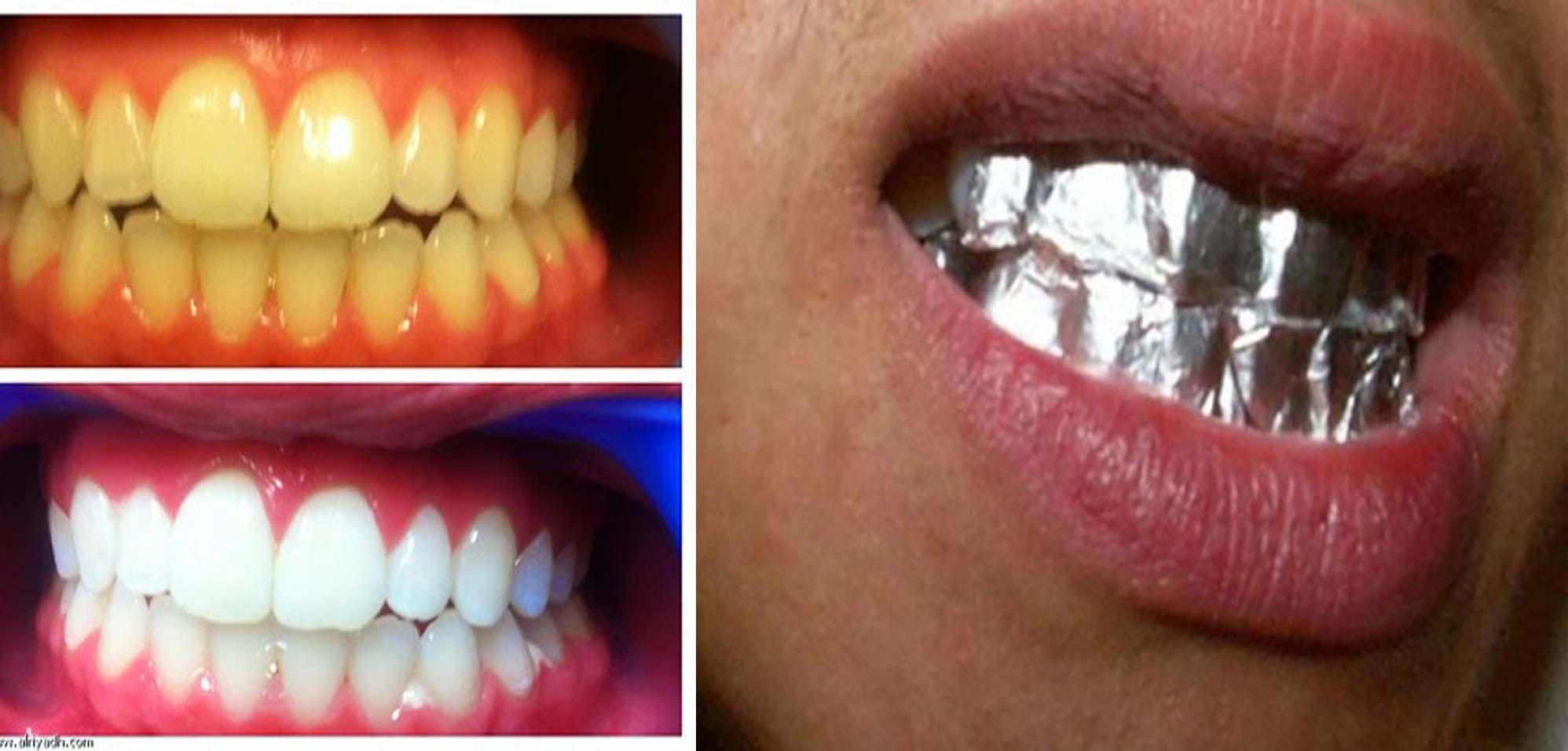 بالصور خلطات تبيض الاسنان , وصفات لجعل الاسنان بيضاء 1267 2