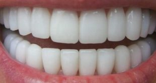 بالصور خلطات تبيض الاسنان , وصفات لجعل الاسنان بيضاء 1267 3 310x165