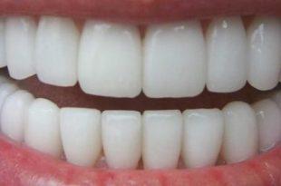 صور خلطات تبيض الاسنان , وصفات لجعل الاسنان بيضاء