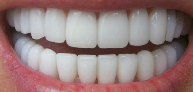 صوره خلطات تبيض الاسنان , وصفات لجعل الاسنان بيضاء
