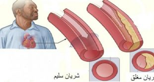 صوره علاج مرض القلب , كيفية التخلص من امراض القلب