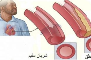 صور علاج مرض القلب , كيفية التخلص من امراض القلب