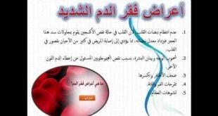 مرض فقر الدم , معلومات يجب ان تعرفها للوقاية من مرض فقر الدم