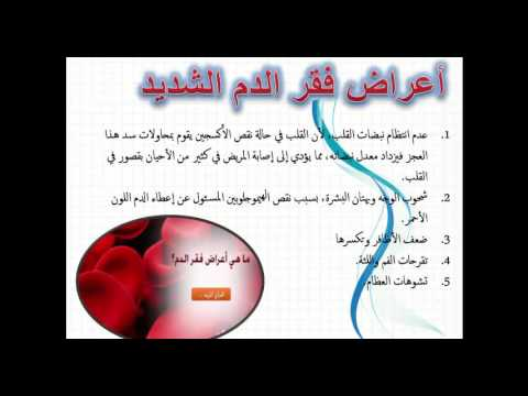 صورة مرض فقر الدم , معلومات يجب ان تعرفها للوقاية من مرض فقر الدم