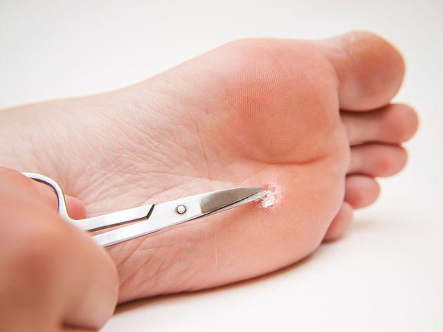 صورة علاج مسمار القدم , كيفية التخلص من الام القدم