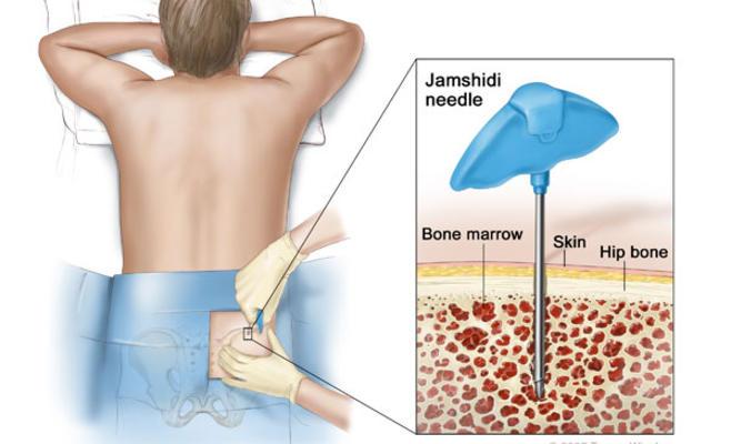 صورة اعراض سرطان الدم , تعرف على اعراض مرض سرطان الدم