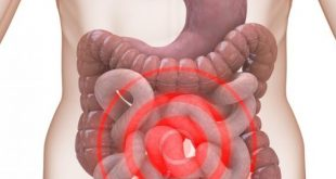 صوره اعراض التهاب القولون , اهم ظواهر التهابات القولون