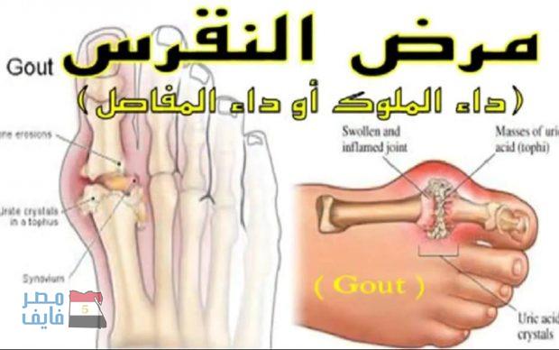صورة علاج النقرس , ما هو النفرس