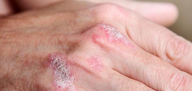 صورة علاج الصدفية بالاعشاب , كيفيه علاج الصدفيه