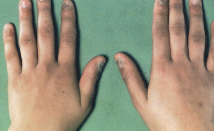 صورة مرض اديسون , ما هو مرض اديسون