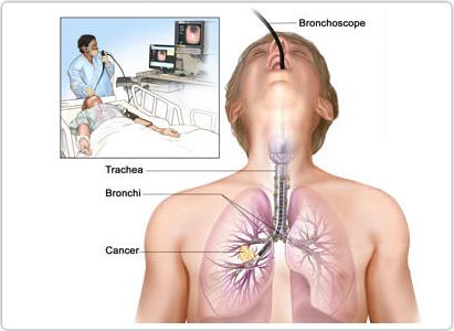 بالصور اعراض سرطان الرئة , تعريف سرطان الرئة 447 1