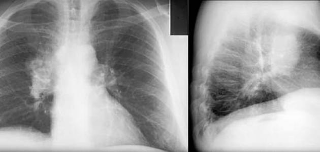 بالصور اعراض سرطان الرئة , تعريف سرطان الرئة 447 2
