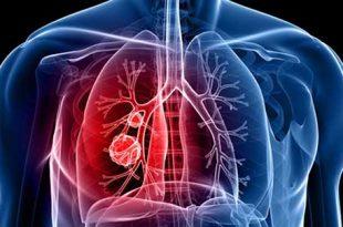 بالصور اعراض سرطان الرئة , تعريف سرطان الرئة 447 3 310x205