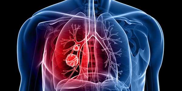 بالصور اعراض سرطان الرئة , تعريف سرطان الرئة 447