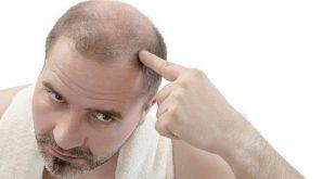 صوره تساقط الشعر , معالجة سقوط الشعر