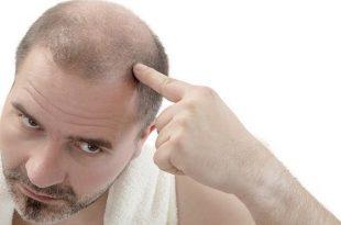 بالصور تساقط الشعر , معالجة سقوط الشعر 455 3 310x205
