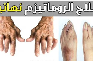 بالصور اعراض الروماتيزم , التخلص من الروماتيزم 522 3 310x205