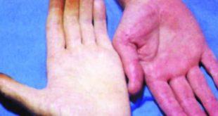 صوره اعراض فقر الدم , ما هو مرض فقر الدم