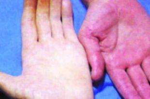 بالصور اعراض فقر الدم , ما هو مرض فقر الدم 548 3 310x205