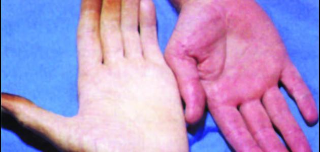 صورة اعراض فقر الدم , ما هو مرض فقر الدم