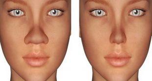 صورة خلطة لتصغير الانف , وصفات طبيعية قد تساعد في حصولك على انف اصغر