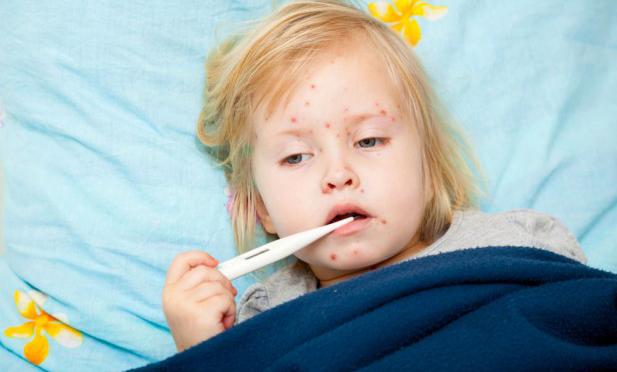 بالصور مرض الحصبة , اعراض وطرق العدوى والوقاية من الحصبة 5059 2