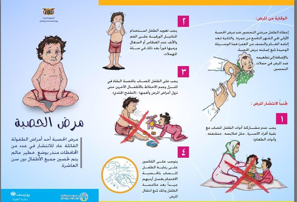 بالصور مرض الحصبة , اعراض وطرق العدوى والوقاية من الحصبة 5059 3