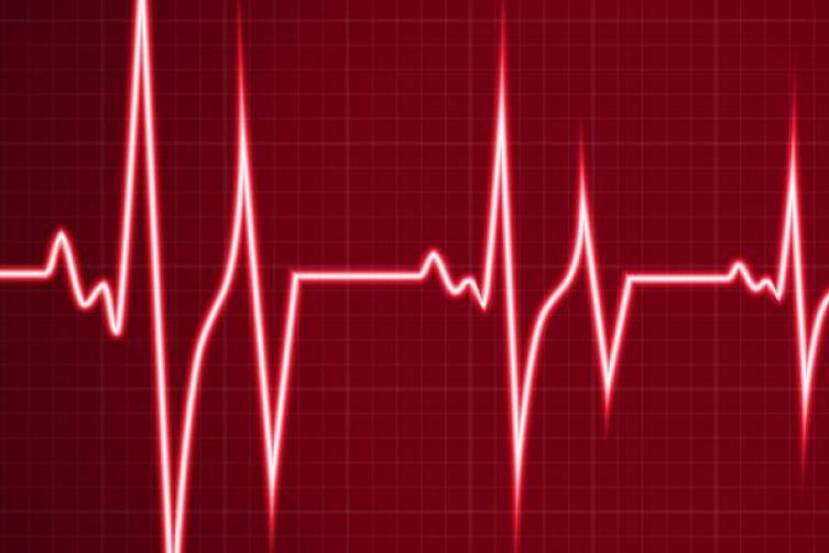 صور تسارع نبضات القلب , تسارع دقات القلب اسبابه وعلاجه