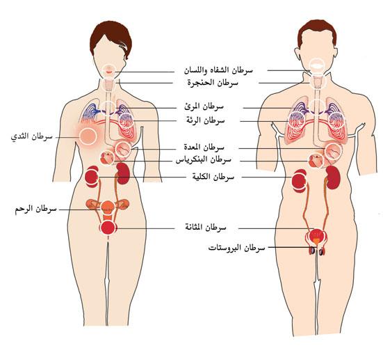 صوره اضرار المعسل , مدي خطوره الشيشه علي صحه الفرد