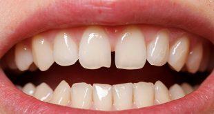 بالصور شكل الاسنان الطبيعي , جمال الاسنان يعبر عن سعادة الانسان 12354 11 310x165
